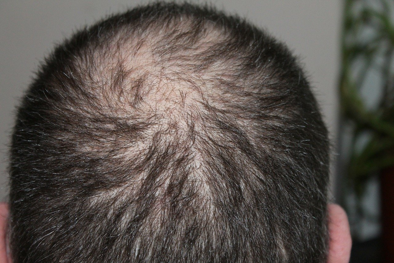 4 Awesome Guides for Choosing the Best Hair Transplant Clinic